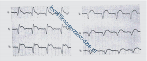 z21_elektrokardiogram