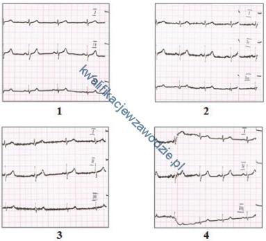 z21_elektrokardiogramy