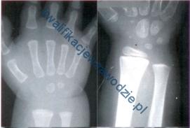 z21_rentgenogramy
