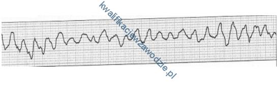 z21_elektrokardiogram2