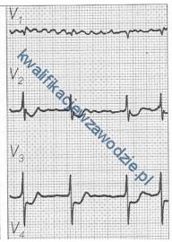 z21_elektrokardiogram3