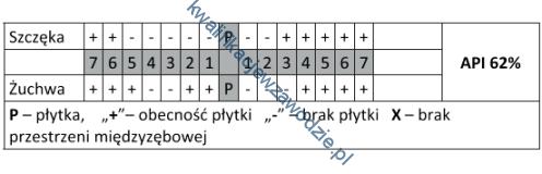 z14_tabela3